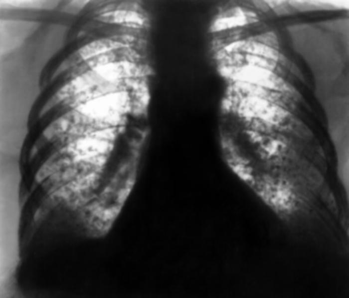 Постлучевой фиброз мягких тканей